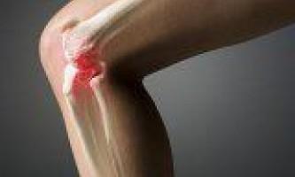 Артроз захворювання і зміна суглобів
