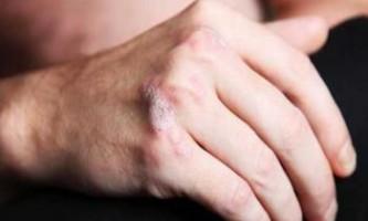 Дослідники знайшли ген, який підтверджує існування псоріатичного артриту