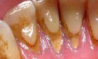 Як прибрати зубний камінь будинку
