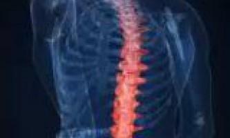 Консервативні способи лікування викривлення хребта