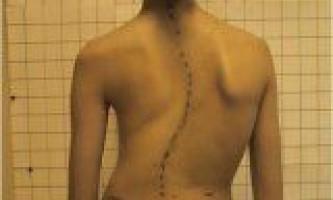 Лікування сколіозу викривлення хребта