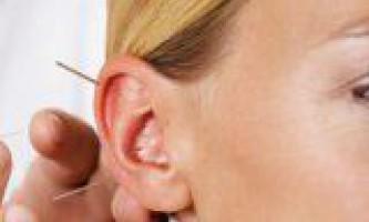 Методи рефлексотерапії проти зайвої ваги