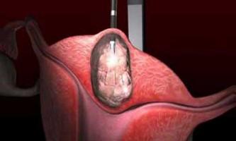 Міома матки: коли потрібна операція