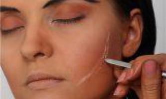 Народні засоби боротьби зі шрамами