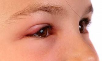 Опух очей після укусу комара - що робити