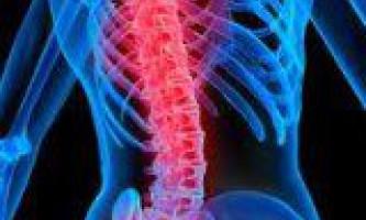 Остеохондроз хребта причини і лікування