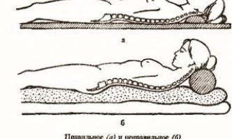 Остеохондроз шийного відділу хребта: симптоми, ознаки, гімнастика