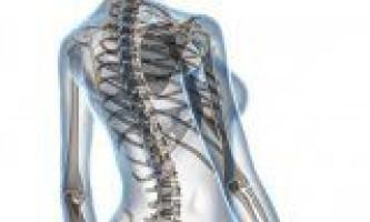 Остеохондроз шийного ділянки хребта