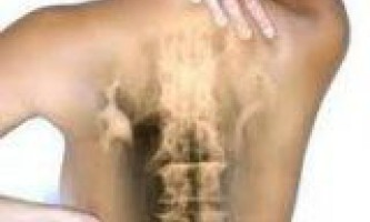 Остеохондроз стає проблемою для багатьох людей