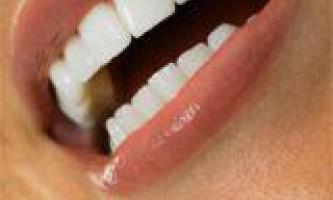 Препарати для видалення зубного каменю і нальоту