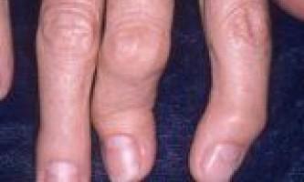 Причини і лікування псоріатичного артриту