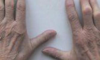 Причини і симптоми ревматоїдного артриту