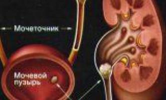 Причини розвитку сечокам`яної хвороби