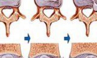 Причини виникнення міжхребцевої грижі