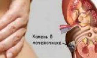Продукти які ведуть до формування каменів в нирках