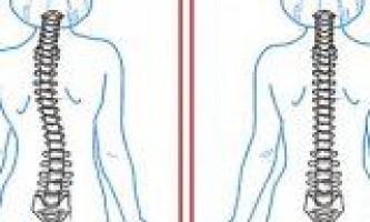 Профілактика захворювань суглобів і хребта