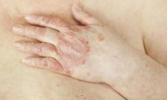 Псоріаз: втрата ваги покращує симптоми