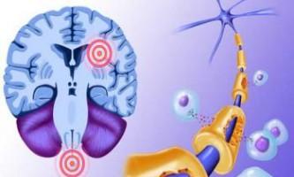 Розсіяний склероз: вплив сонця і лішего ваги в підлітковому віці