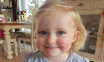 Дитину покусали комарі: що робити, як лікувати