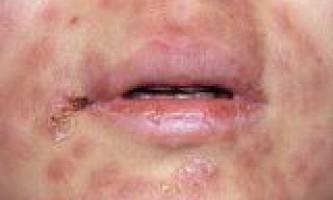 Сифіліс шляху передачі симптоми і лікування