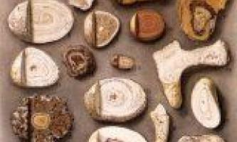 Склад ниркових і жовчних каменів