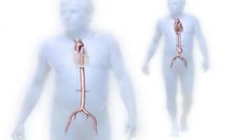 Тяжкий псоріаз може привести до розриву черевної аорти