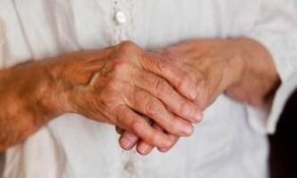 Вчені з нідерландів придумали як лікувати артрит за допомогою імплантату