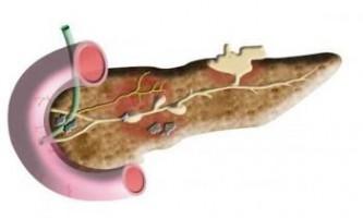 Вчені виділили ген, які винен у розвитку панкреатиту