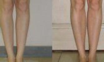 Збільшення гомілок і корекція викривлених ніг
