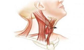 У гкб № 36 стали робити операції на щитовидці без рубців на шиї