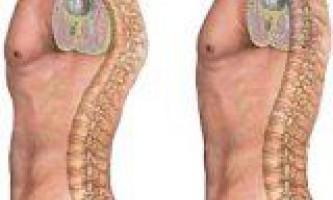 Види і методи лікування кіфозу