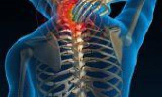 Види і прояви остеохондрозу у людини