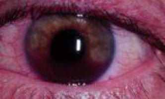 Захворювання очей тромбоз вен сітківки