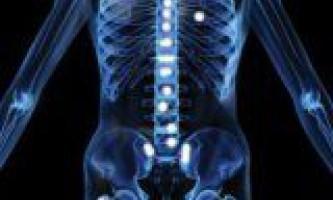 Захворювання метастатический карціноматозний артрит