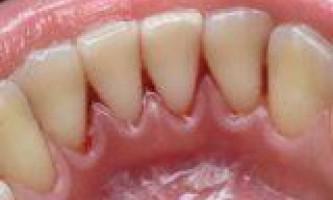 Зубний наліт і зубний камінь